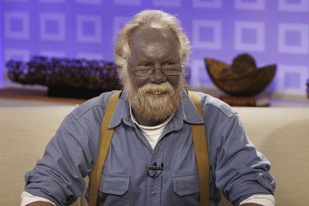 Әлемдегі ең соңғы қара-көк түсті адам дүние салды
