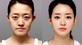Корея сәнқойлары: Пластикалық операцияға дейін