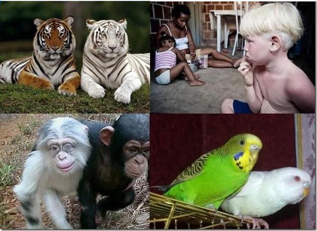 Альбинизм - ғажайып сый ма, әлде ауыр тағдыр ма?