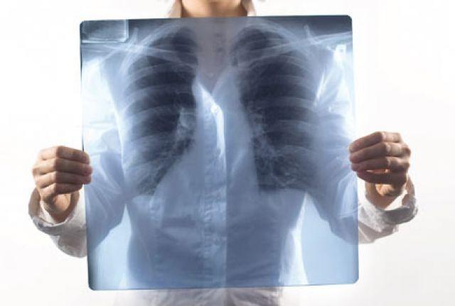 12 қараша - халықаралық пневмониямен күрес күні