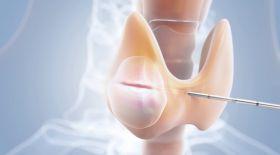 Радиожиіліктік абляция – хирургиялық ота жасамай емдеу жолы