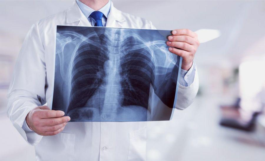 Флюорография немесе рентген: қандай айырмашылығы бар?
