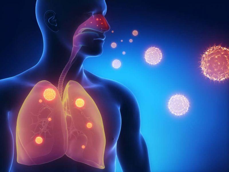 Пневмонияның белгілері мен түрлері