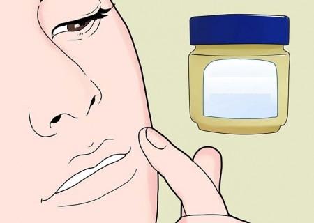 аллергия на ибупрофен фото